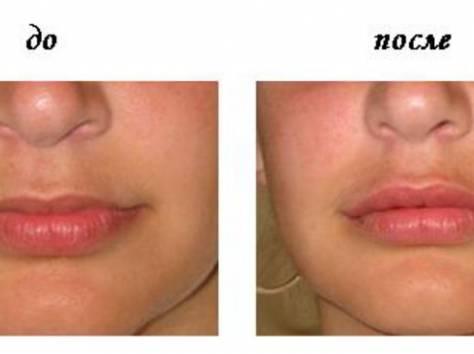 Верхняя губа до и после гиалуроновой кислоты