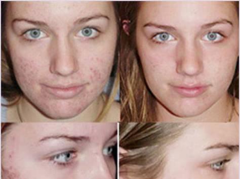 Как в домашних условиях убрать шрам с лица