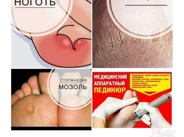 Лечение вросшего ногтя ярославль